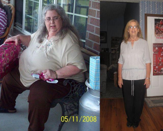 Пожилая женщина до и после похудения